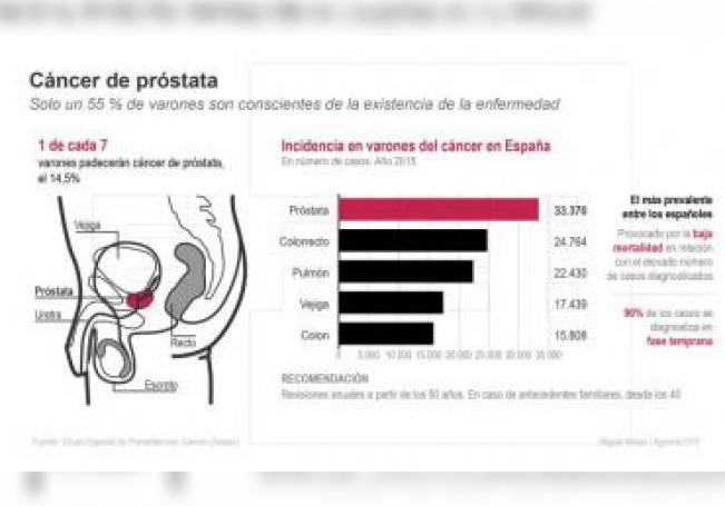 """Detalle de la infografía de la Agencia EFE """"Cáncer de próstata"""" disponible en EFE/Archivo"""