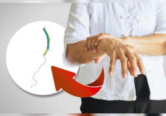Haber sufrido la extirpación del apéndice podría proporcionar cierta protección frente al Parkinson, una enfermedad que afecta a unas 6,3 millones de personas en el mundo, según reveló este jueves un especialista. EFE/UNAM/SOLO USO EDITORIAL