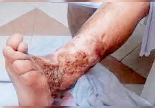 La lepra es una enfermedad infecciosa causada por la bacteria Mycobacterium leprae y provoca úlceras cutáneas, daño neurológico y debilidad muscular.