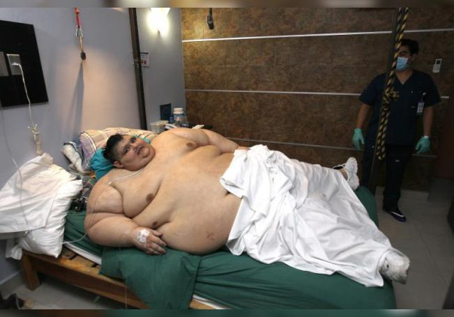 Del Guinness al hombre más gordo del mundo a superar la COVID en solo 3 años