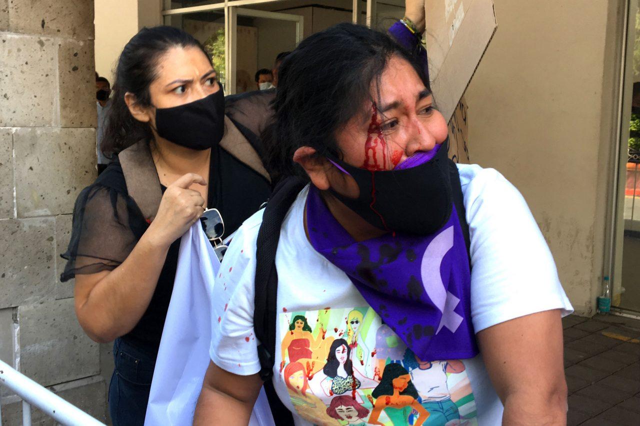 activista-herida-guerrero-24022021-1280x853.jpg